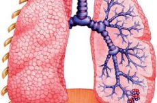 Муковисцидоз легких — заболевание наследственного характера. Как лечить?