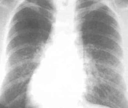 фиброз легких рентгенограмма грудной клетки фото