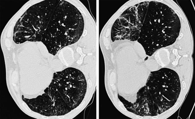 интерстициальная пневмония легких фото