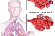 Подробная информация о заболевании эмфизема легких