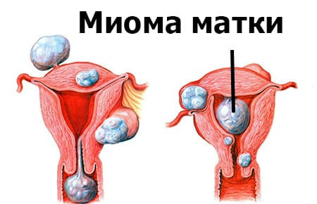 рисунок миома матки