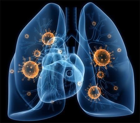 пневмония легких рисунок