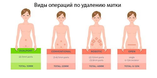 Виды операций по удалению матки