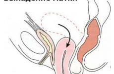 Своевременное лечение выпадения матки предотвратит ее опущение!