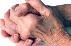 Ювенильный ревматоидный артрит — патология мелких суставов