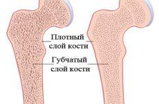 Остеопороз прогрессирующее заболевание требующее внимания