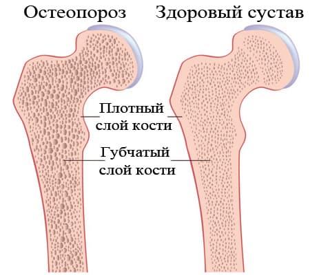 Остеопороз симптомы и лечение рисунок
