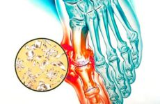 Подагрический артрит – серьезная патология при подагре