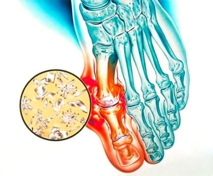 Подагрический артрит рисунок
