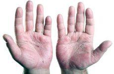 Псориатическийартрит — хроническое заболевание системного характера