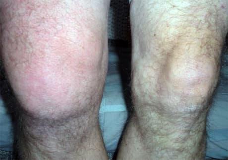 артрит коленного сустава опухание фото