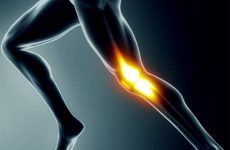 Что такоеартрит коленного сустава: симптомы, виды, причины и методы лечения болезни