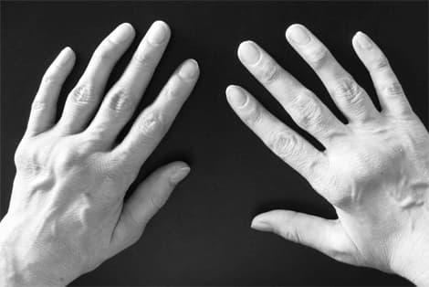 артрит пальцев рук деформация фото