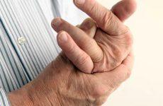 Артрит пальцев рук — как и чем лечить заболевание. Причины развития и первые симптомы