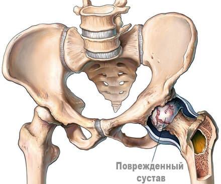 артрит тазобедренного сустава рисунок