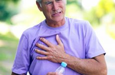 Основные симптомы и виды стенокардии