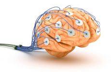 Энцефалограмма головного мозга или сокращенно ЭЭГ — что можно увидеть в результатах?
