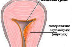 Рак тела матки злокачественное но излечимое образование