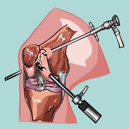 гнойный артрит артротомия рисунок