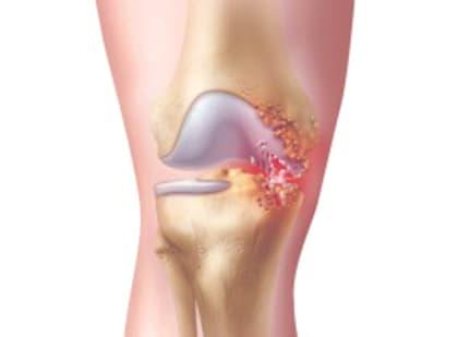 Гнойный артрит: описание, диагностика, лечение