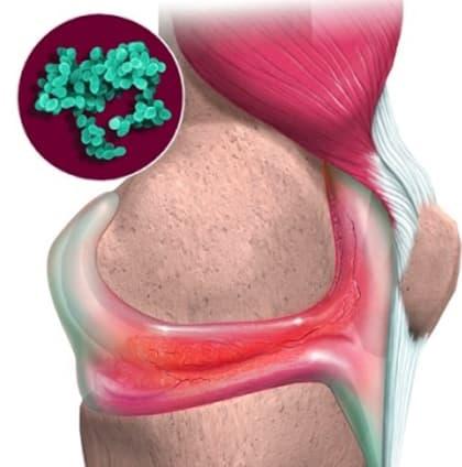 инфекционный артрит рисунок