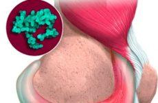 Инфекционный артрит. Как правильно определить возбудитель болезни?