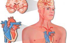 Понятие разновидностей инсульта головного мозга