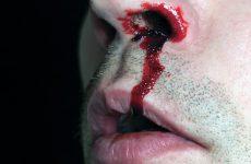 Эффективные методы первой помощи при крови из носа