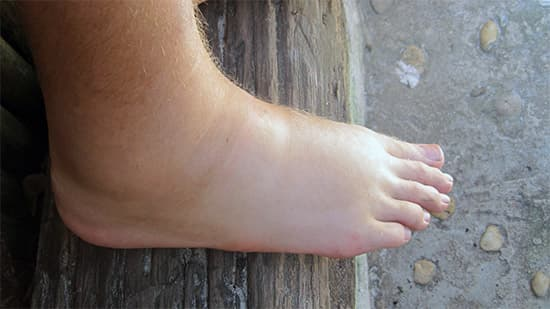 На фото пример отечности ног