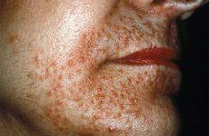 Традиционные и народные методы лечения демодекоза на лице