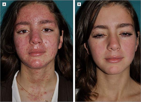 демодекоз фото на лице лечение