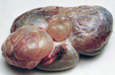 Цистаденома яичника может достигать внушительных габаритов