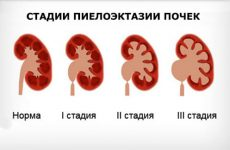 Пиелоэктазия почек это аномальное расширение почечных лоханок