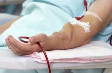 Фистула для гемодиализа и ее значение при внепочечном очищении крови