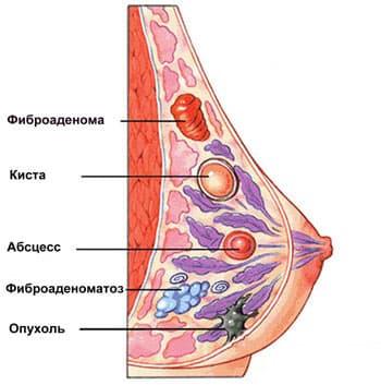 на рисунке - заболевания молочных желез
