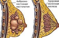 Симптомы и методы лечения диффузной фиброзно-кистозной мастопатии