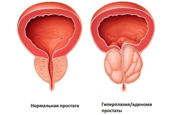Чрезмерная сексуальная активность приводит у мужчин