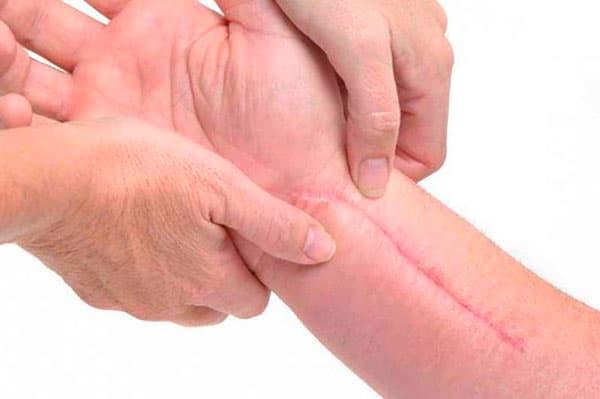 Келоидный рубец: как убрать и последствия после удаления