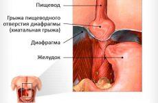 Время — главный враг при лечении диафрагмальной грыжи у новорожденного