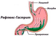Основной причиной болезней пищеварения является Дуодено-гастральный рефлюкс