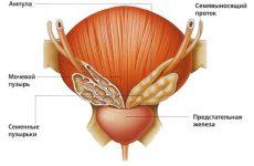 Что такое гомеопатия при заболеваниях предстательной железы