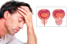Опасность мужского заболевания — простатит и его разновидности