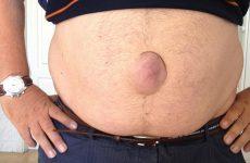 В чем опасность пупочной грыжи для мужчин и женщин?