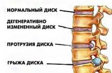Распространенные виды протрузий грудного отдела позвоночника