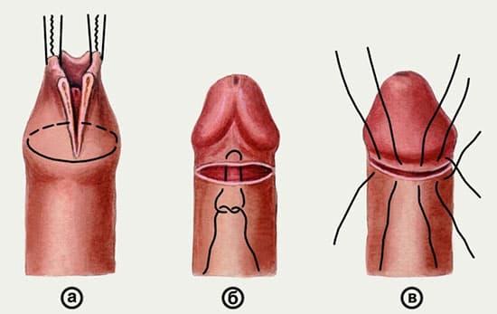 рисунок - обрезание крайней плоти пениса