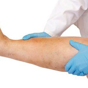 Тромбофлебит вен нижних конечностей — симптомы и лечение