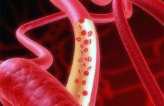Адекватные способы терапии гранулематоза Вегенера