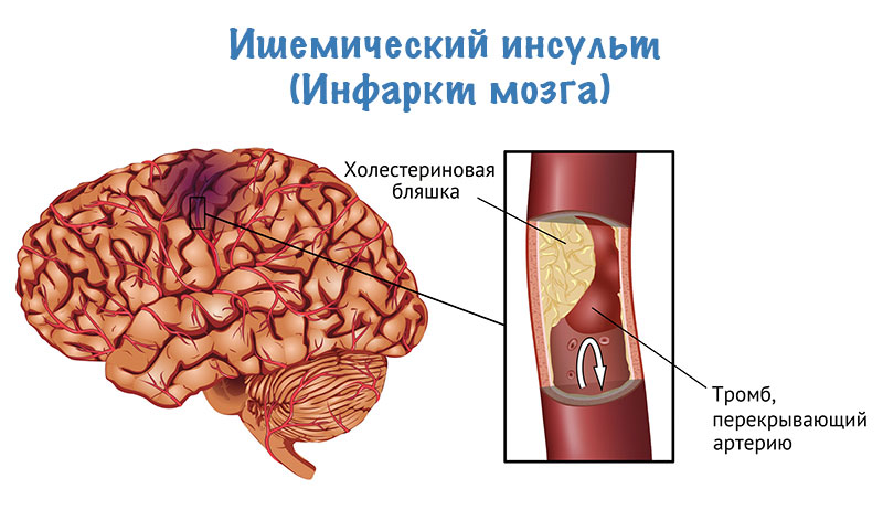 От чего может случиться инфаркт мозга