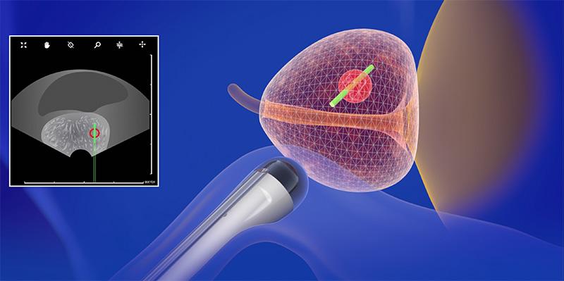 трансректальная целевая биопсия простаты
