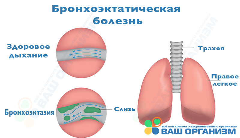 Схематичная иллюстрация бронхоэктатической болезни
